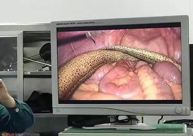 Мужчина обратился к врачу по поводу постоянного запора. Доктор осмотрел пациента и потерял дар речи