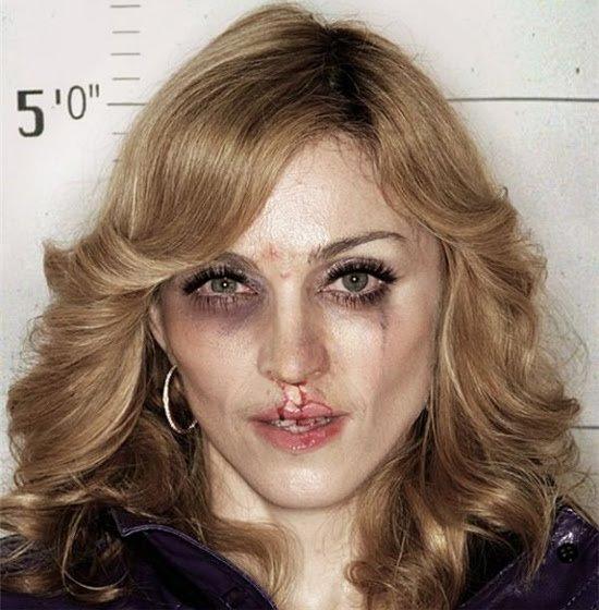Мадонна с разбитым носом