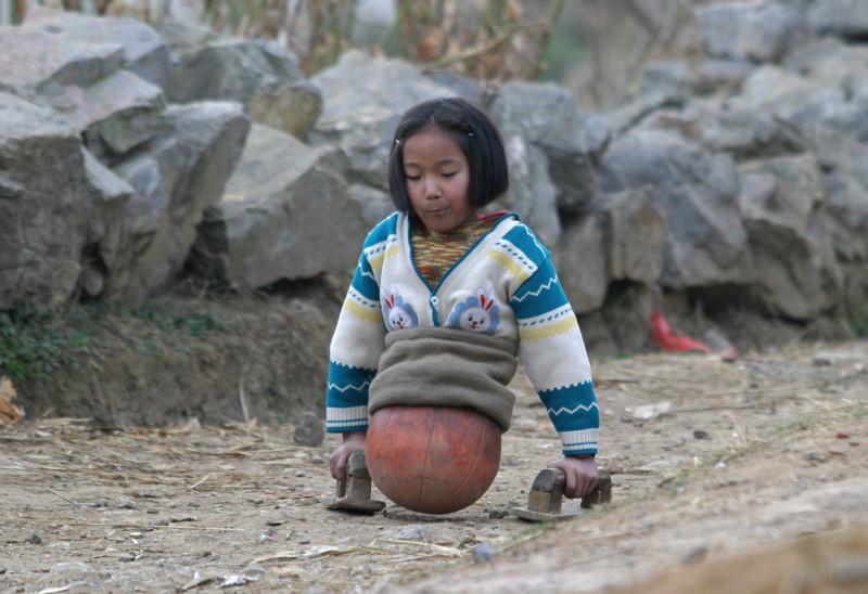 В 4-летнем возрасте после аварии девочка осталась без ног и ходила при помощи мяча, а теперь она известная спортсменка