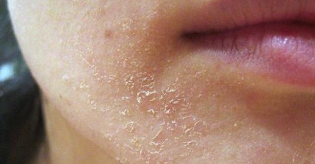 Если вы заметили такое на вашей коже, значит органзим подает сигнал