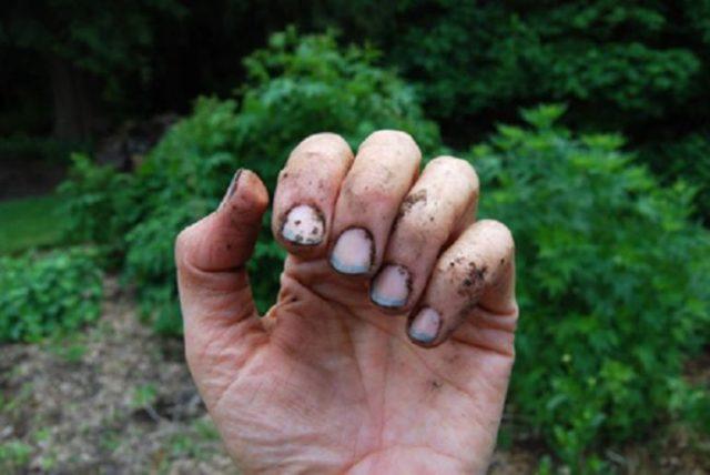 Что делать, если под ногти попала земля